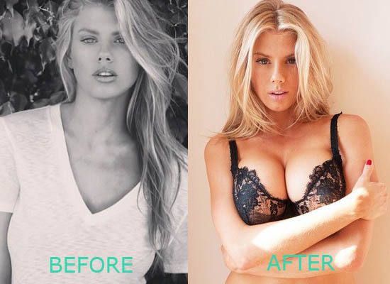 Charlotte McKinney Plastic Surgery Boob Job Charlotte McKinney Plastic Surgery Boob Job Before and After