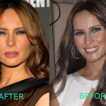 Melania Trump Plastic Surgery 150x150 Melania Trump Plastic Surgery Before and After