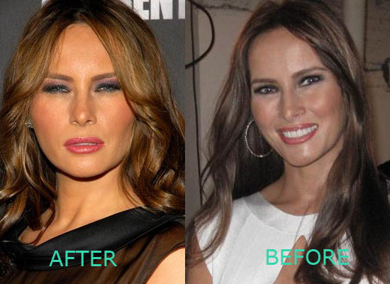 Melania Trump Plastic Surgery Melania Trump Plastic Surgery Before and After
