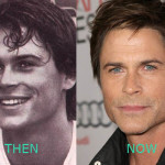 Rob Lowe Plastic Surgery Before ad After