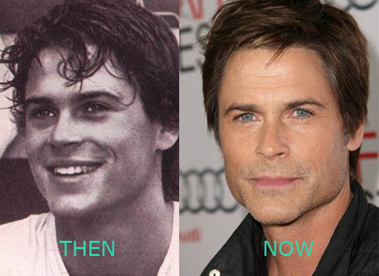 Rob Lowe Plastic Surgery Rob Lowe Plastic Surgery Before ad After