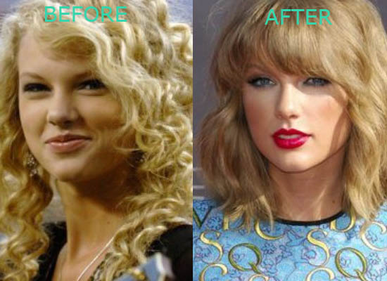 Taylor Swift Plastic Surgery Before After Taylor Swift Plastic Surgery Before and After