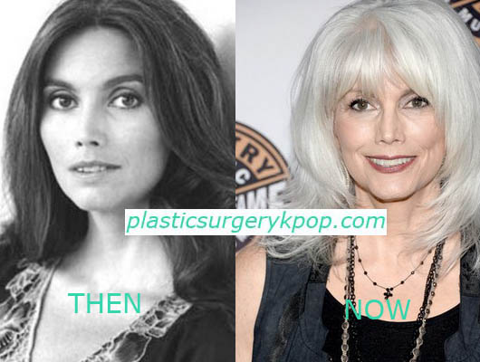 Emmylou Harris Plastic Surgery Emmylou Harris Plastic Surgery Before and After