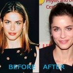 Amanda Peet Plastic Surgery Before and After