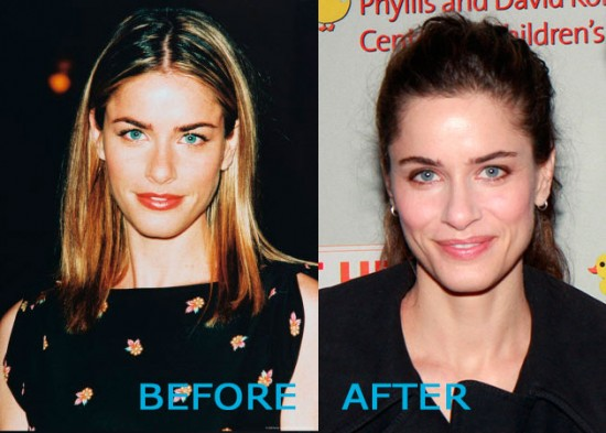 Amanda Peet Plastic Surgery Before and After 550x393 Amanda Peet Plastic Surgery Before and After