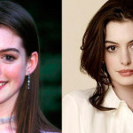 Anne Hathaway Plastic Surgery Before and After