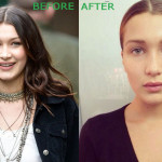 Bella Hadid Plastic Surgery Before and After 150x150 Bella Hadid Plastic Surgery Before and After
