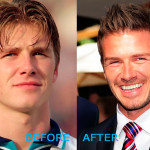 David Beckham Plastic Surgery Before and After