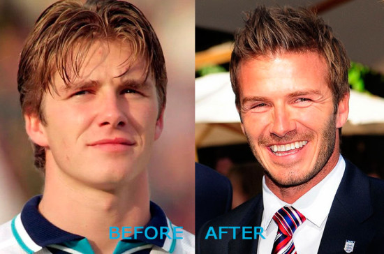 David Beckham Plastic Surgery Before and After 550x364 David Beckham Plastic Surgery Before and After