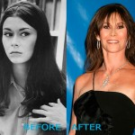 Kate Jackson Plastic Surgery Before and After