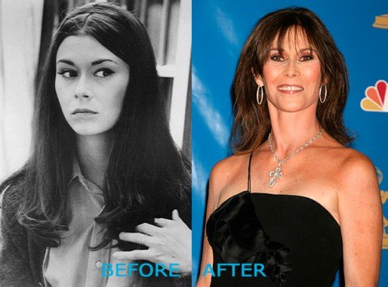 Kate Jackson Plastic Surgery Before and After 550x407 Kate Jackson Plastic Surgery Before and After