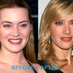 Kate Winslet Plastic Surgery Before and After 150x150 Kate Winslet Plastic Surgery Before and After