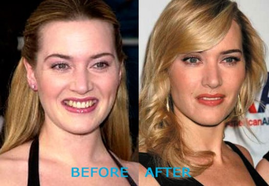 Kate Winslet Plastic Surgery Before and After 550x381 Kate Winslet Plastic Surgery Before and After