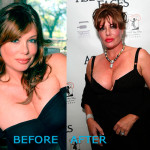 Kelly Lebrock Plastic Surgery Before and After 150x150 Christina Applegate Plastic Surgery Before and After