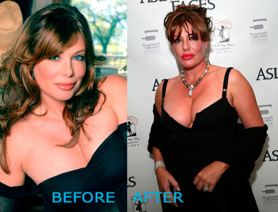 Kelly Lebrock Plastic Surgery Before and After 550x419 Kelly Lebrock Plastic Surgery Before and After
