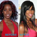 Kelly Rowland Plastic Surgery Before and After 150x150 Avril Lavigne Plastic Surgery