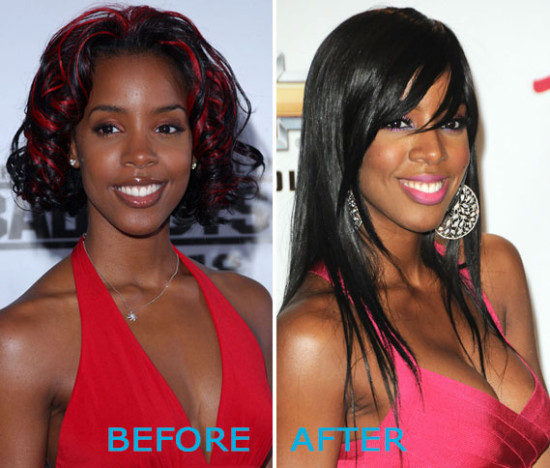 Kelly Rowland Plastic Surgery Before and After 550x468 Kelly Rowland Plastic Surgery Before and After