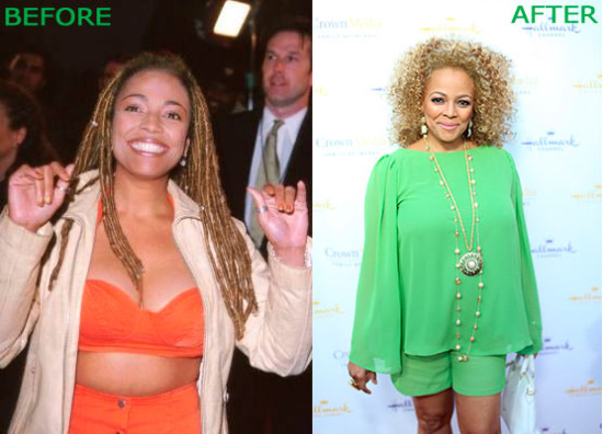 Kim Fields Plastic Surgery Before And After 550x396 Kim Fields Plastic Surgery Before And After