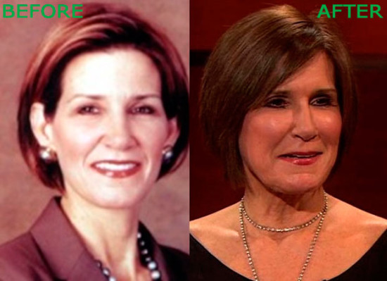 Mary Matalin Plastic Surgery Before and After 550x399 Mary Matalin Plastic Surgery Before and After