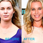 Rebecca Romijn Plastic Surgery Before and After 150x150 Ashley Tisdale Nose Job