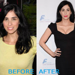 Sarah Silverman Plastic Surgery Before and After