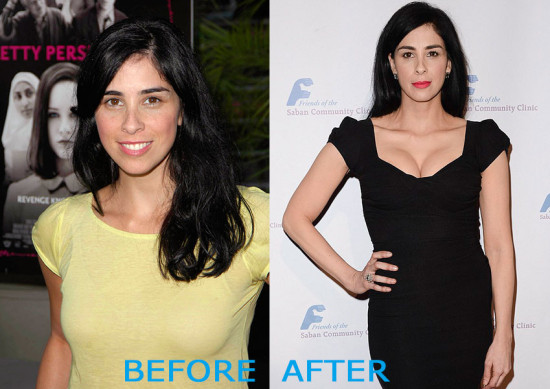 Sarah Silverman Plastic Surgery Before and After 550x389 Sarah Silverman Plastic Surgery Before and After