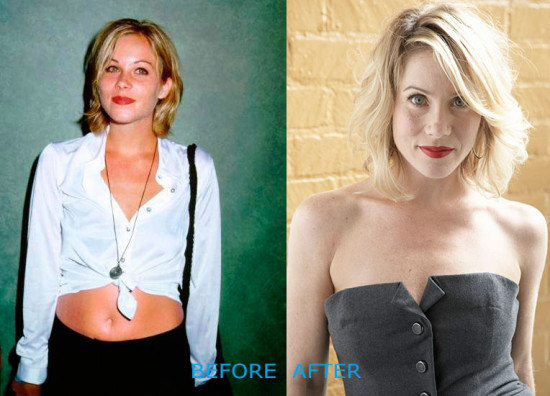 christina applegate plastic surgery before and after 550x396 Christina Applegate Plastic Surgery Before and After