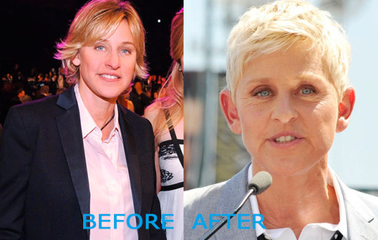 ellen degeneres plastic surgery before and after 550x350 Ellen DeGeneres Plastic Surgery Before and After