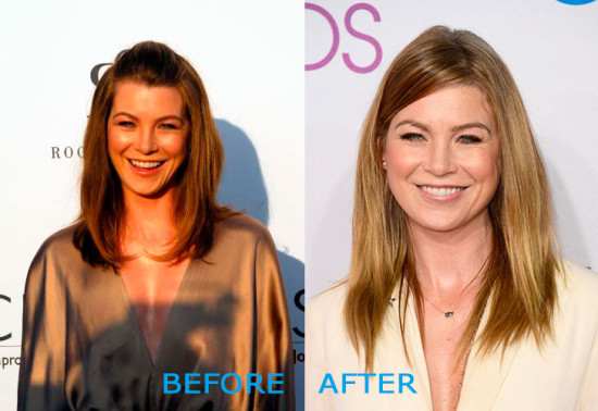 ellen pompeo plastic surgery before and after 550x378 Ellen Pompeo Plastic Surgery Before and After