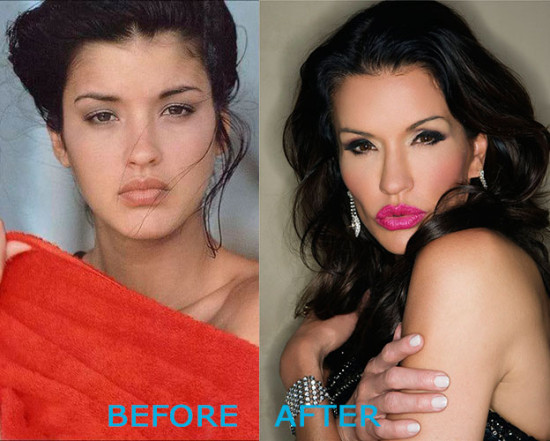 janice dickinson plastic surgery before and after 550x441 Janice Dickinson Plastic Surgery Before and After