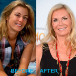 katherine kelly lang plastic surgery before and after 150x150 Kelly Ripa Plastic Surgery Before and After