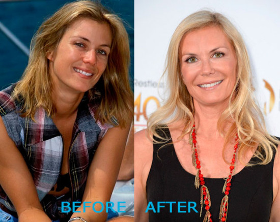 katherine kelly lang plastic surgery before and after 550x437 Katherine Kelly Lang Plastic Surgery Before and After