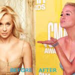kellie pickler plastic surgery before and after 150x150 Rose McGowan Plastic Surgery Before and After