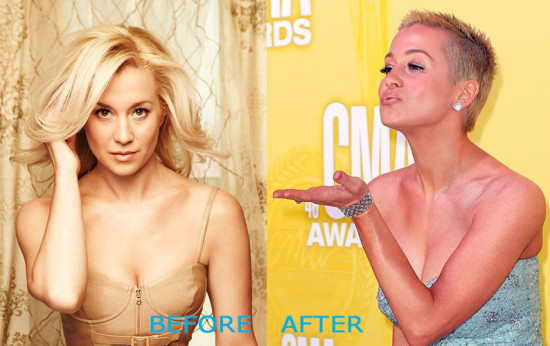 kellie pickler plastic surgery before and after 550x346 Kellie Pickler Plastic Surgery Before and After