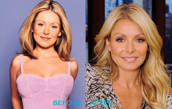 kelly ripa plastic surgery before and after 550x348 Kelly Ripa Plastic Surgery Before and After
