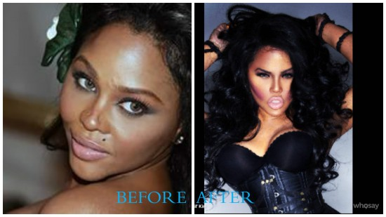lil kim 550x309 Lil Kim Plastic Surgery Before and After