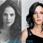 mary louise parker plastic surgery before and after 150x150 Janice Dickinson Plastic Surgery Before and After