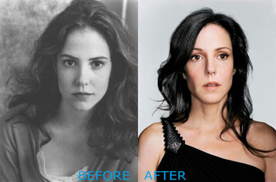 mary louise parker plastic surgery before and after 550x363 Mary Louise Parker Plastic Surgery Before and After