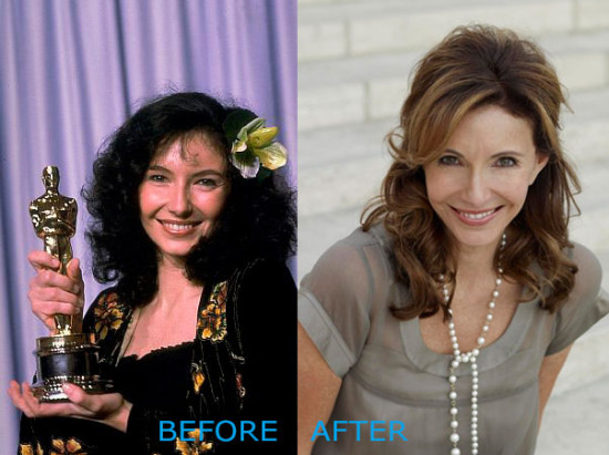 mary steenburgen plastic surgery before after 550x411 Mary Steenburgen Plastic Surgery Before and After
