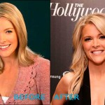 megyn kelly plastic surgery 150x150 Amanda Peet Plastic Surgery Before and After