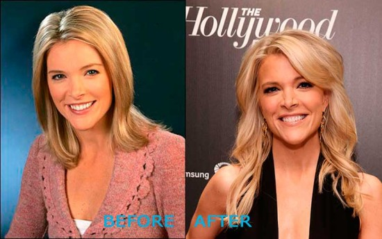 megyn kelly plastic surgery 550x344 Megyn Kelly Plastic Surgery Before and After
