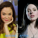 rose mcgowan plastic surgery before and after 150x150 Kellie Pickler Plastic Surgery Before and After