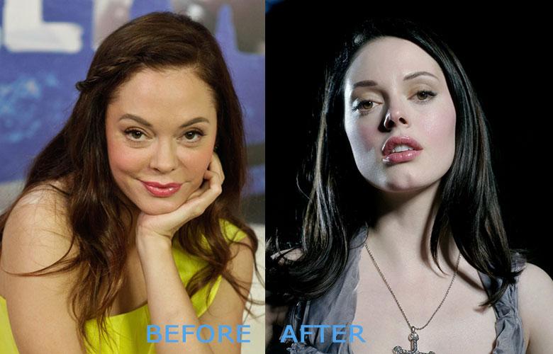 терьер, роуз макгоуэн до и после пластики фото барбекю