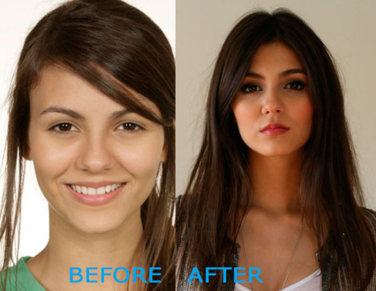 victoria justice plastic surgery before and after 550x426 Victoria Justice Plastic Surgery Before and After