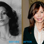 Victoria Principal Plastic Surgery Before and After
