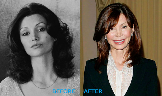 victoria principal plastic surgery before and after 550x326 Victoria Principal Plastic Surgery Before and After