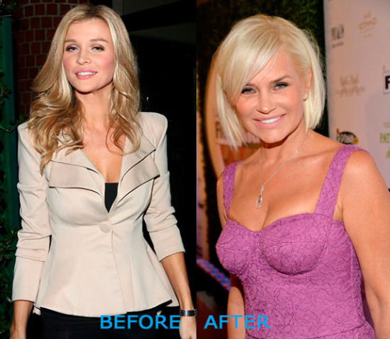 yolanda foster plastic surgery before and after 550x479 Yolanda Foster Plastic Surgery Before and After