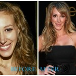 Haylie Duff 150x150 Bristol Palin Plastic Surgery Before and After Jaw Surgery Pictures