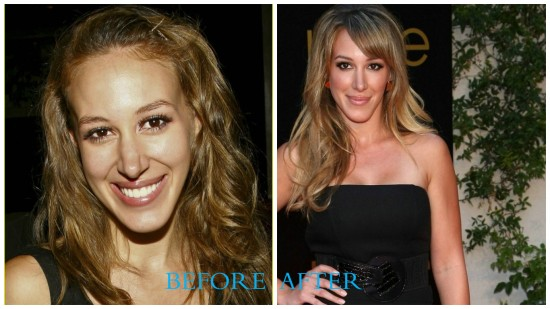 Haylie Duff 550x309 Haylie Duff Plastic Surgery Before and After