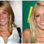 Heidi Montag 150x150 Heidi Montag Plastic Surgery Before and After